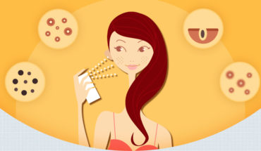 How Your Skin Is Affected By Your Hormonal Imbalance - Infographic
