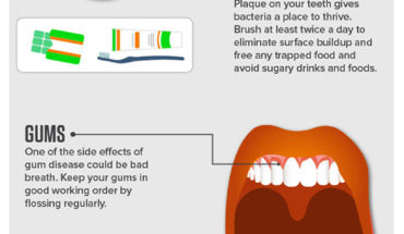 5 Things To Keep In Mind For A Fresh Breath - Infographic