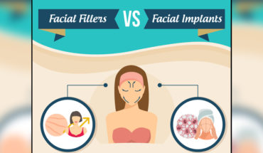 Facial Fillers or Facial Implants? - Infographic