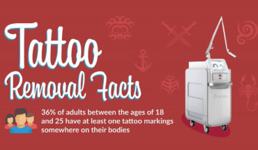 What You Didn't Know About Tattoo Removal Practices - Infographic