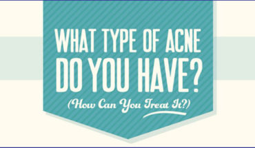 Different Types of Acne and Their Treatment - Infographic
