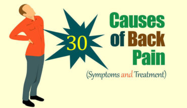 Managing Back Pain: 30 Causes and Treatment - Infographic