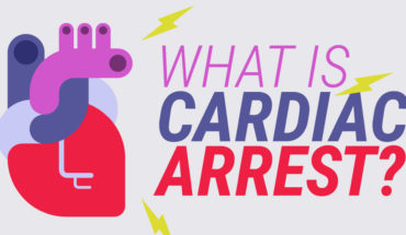 Why Do Cardiac Arrests Happen? - Infographic