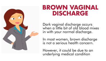 Vaginal Brown Discharge: Causes and Concerns - Infographic