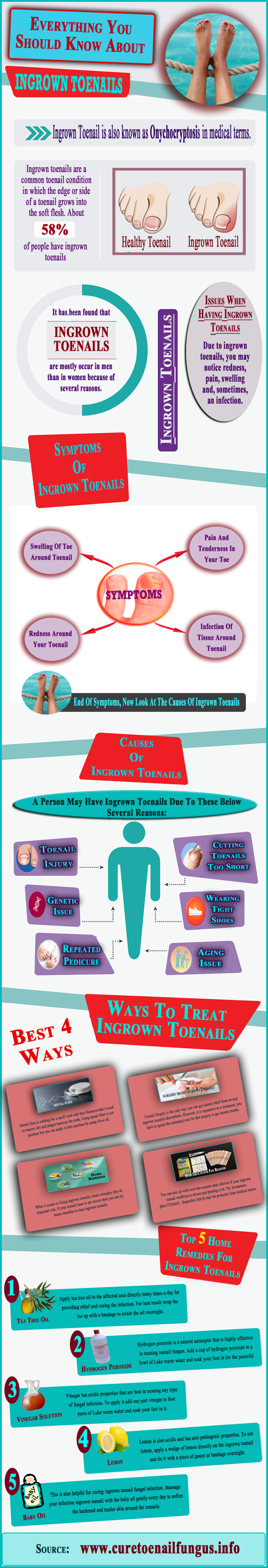 Treatment for Ingrown Toenails: Effective Home Remedies - Infographic