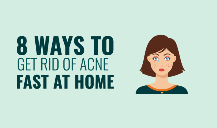 8 Home Treatm8 Home Treatments to Get Rid of Acne Fast - Infographicents to Get Rid of Acne Fast