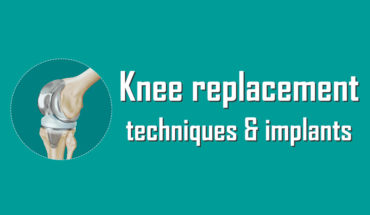 Comprehensive Guide to Knee Replacement Techniques - Infographic
