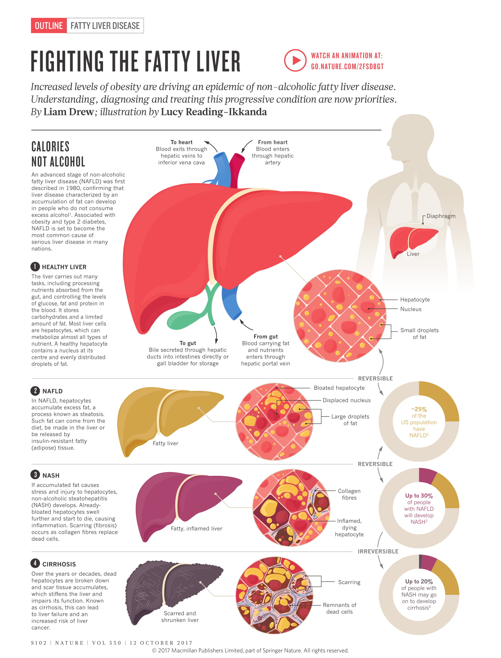Understanding Fatty Liver Disease and Its Treatment Protocol - Infographic