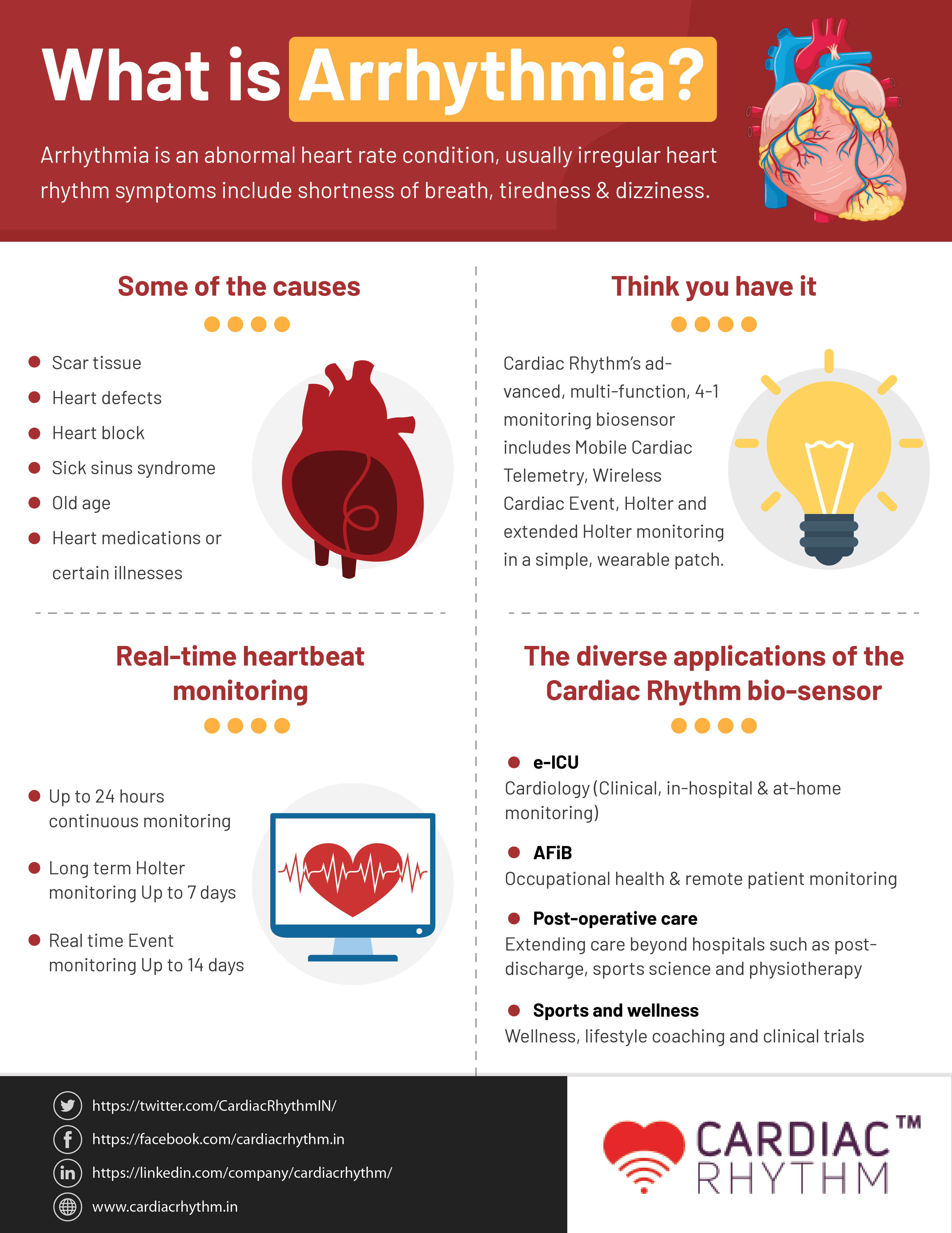Everything You Want to Know About Arrhythmia: A Quick Guide - Infographic