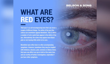 Red Eyes: A Concise Guide - Infographic